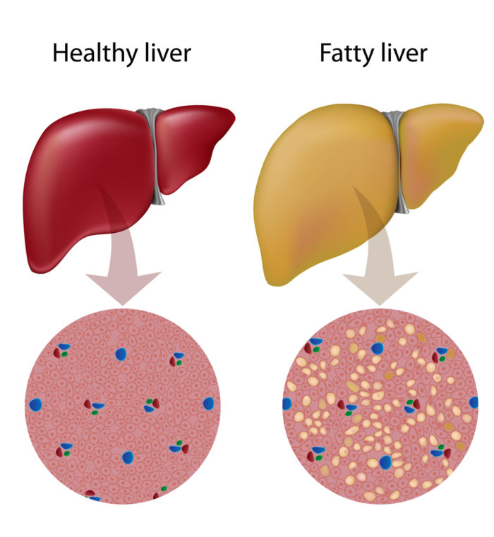 Weight Loss for Fatty Liver